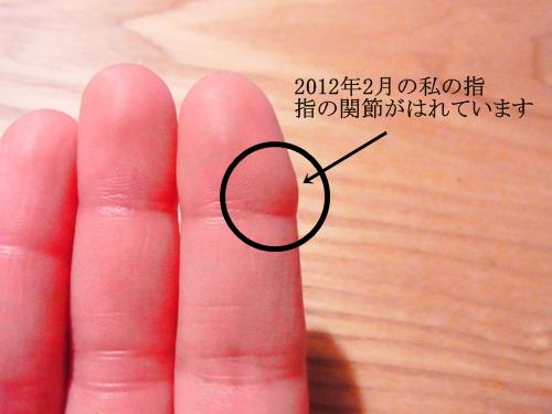 R1151861 毎年冬、手の指にできていたしもやけ。今年は予防できました