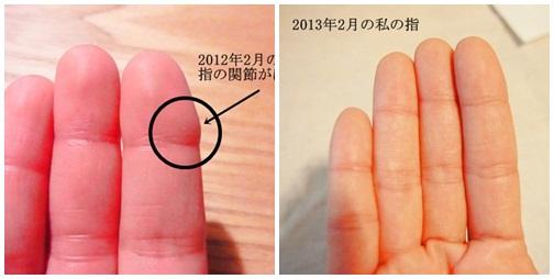 page130226 毎年冬、手の指にできていたしもやけ。今年は予防できました
